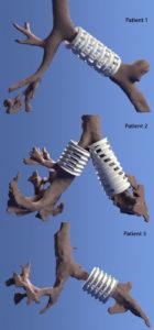 3d-odštampan-implant