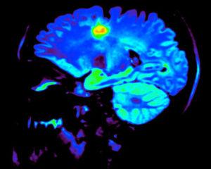 3d štampa i skeniranje mozga