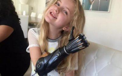 Besplatne 3d štampane proteze za decu u Velikoj Britaniji