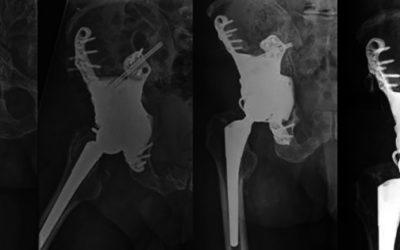 3d štampani implanti za pacijente obolele od tumora